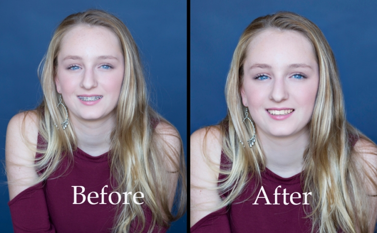 braces removed in teen photos